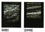 超音波(エコー)画像観察装置