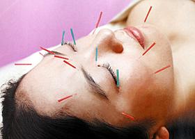 美容鍼灸イメージ